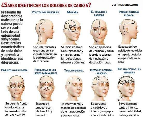 Sabes identificar los dolores de cabeza?